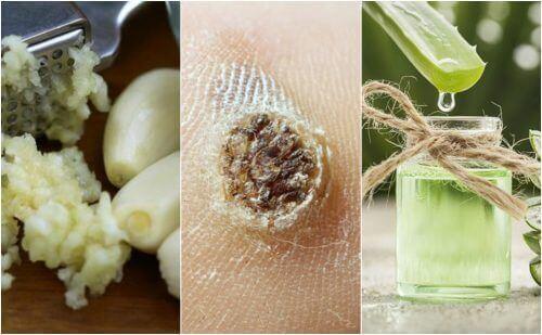 Bekjempe vorter med disse 5 naturlige remediene