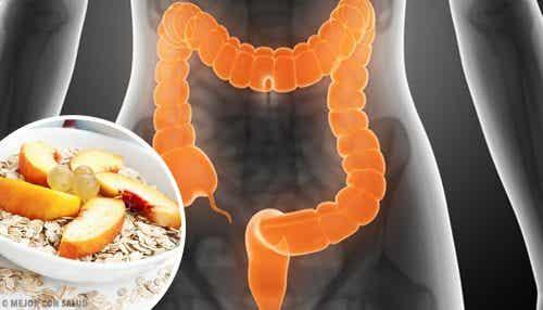 Her er hva du bør spise for å hjelpe med å lindre irritabel tarmsyndrom