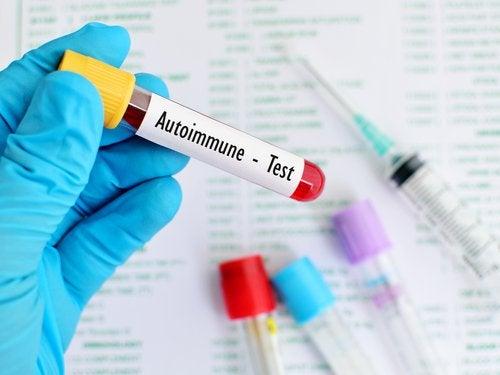 Autoimmun-test