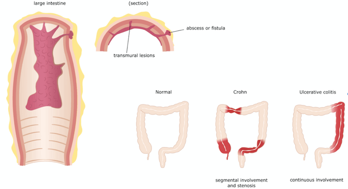 Crohns sykdom