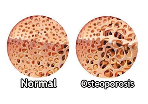 Illustrasjon av beinskjørhet
