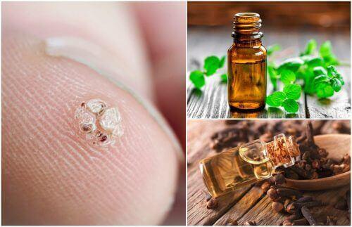7 eteriske oljer som vil hjelpe deg med å bli kvitt vorter
