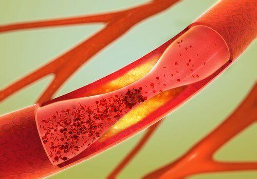 De 12 beste matvarene for å fjerne blokkeringer i arteriene dine