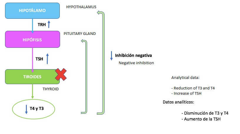 Primær hypotyreose