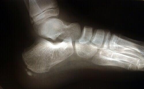 Røntgen av fot