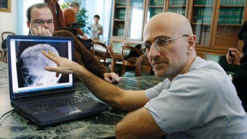Sergio Canaveros snakker om hodetransplantasjon