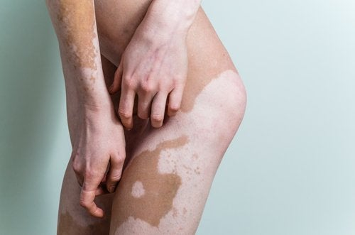 Hva er vitiligo? Lær alt om årsaker og symptomer
