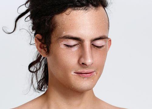 Person med vitiligo