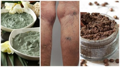 Bli kvitt åreknuter naturlig med disse hjemmelagde remediene
