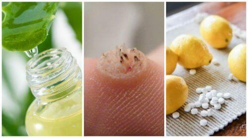 Bli kvitt vorter med disse 6 effektive remediene