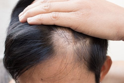 6 naturlige remedier mot skallethet