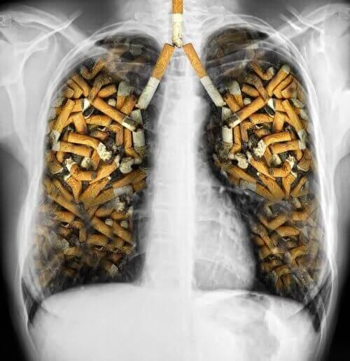 Lungene forgiftet av sigaretter