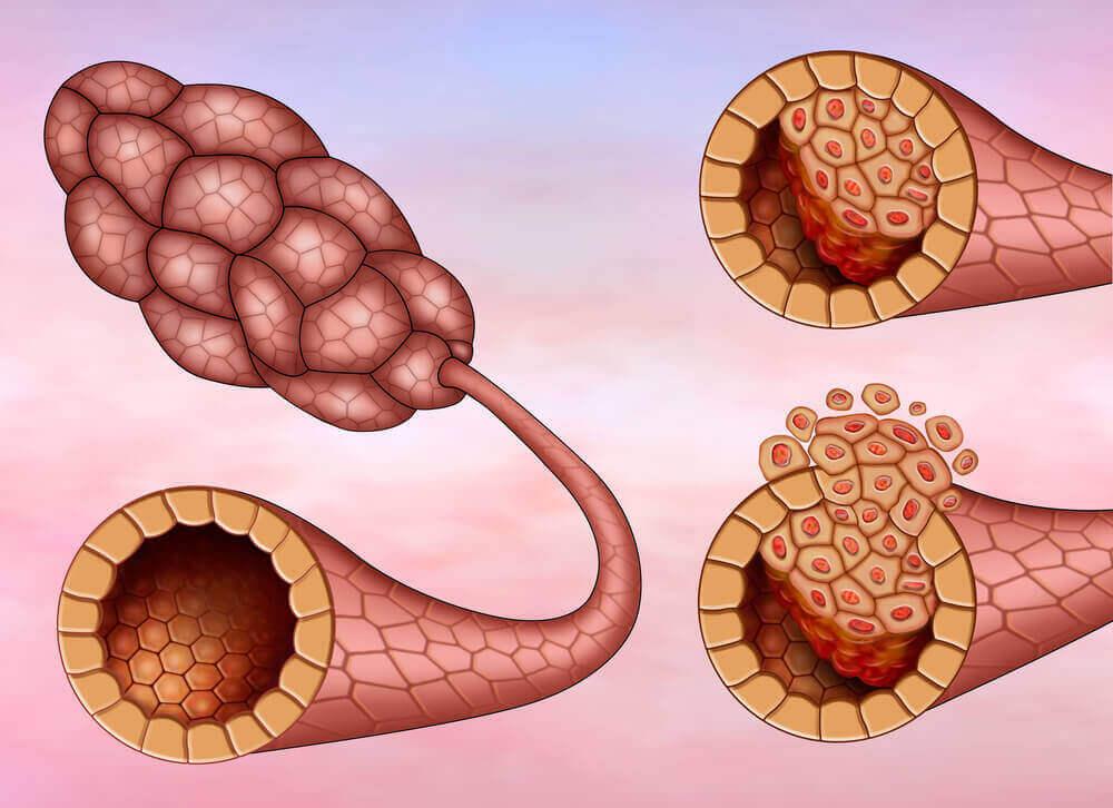 Brystkreft karsinom
