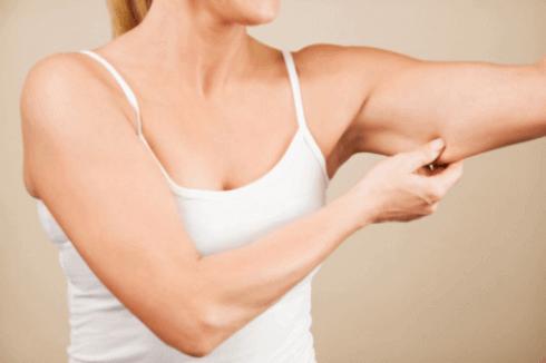 Kvinne ser på fettet på armene sine