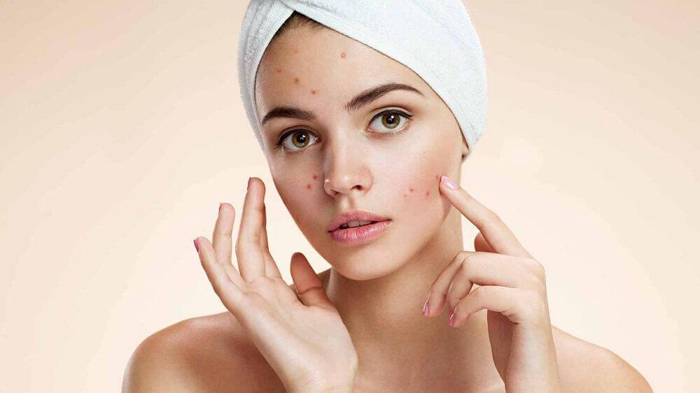 Kvinne behandler akne med eplecidereddik og dets skjønnhetshemmeligheter