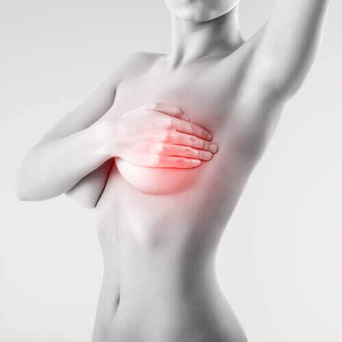 Kvinne med brystkreft