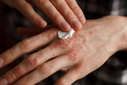 Fem urtebaserte behandlinger mot psoriasis