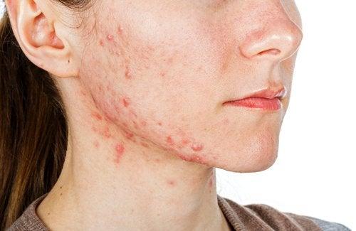 Kvinne med akne