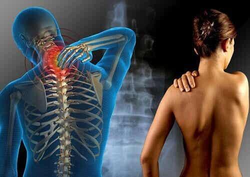 Tips for behandling av fibromyalgi