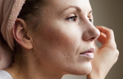 Kvinne med arr i ansiktet