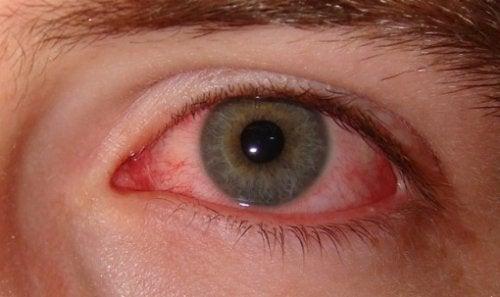 Tørt øye-syndrom