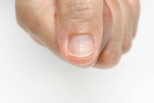 Slik kan du bli kvitt linjer på neglene