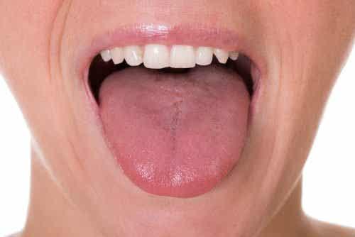De 5 første symptomene på tungekreft