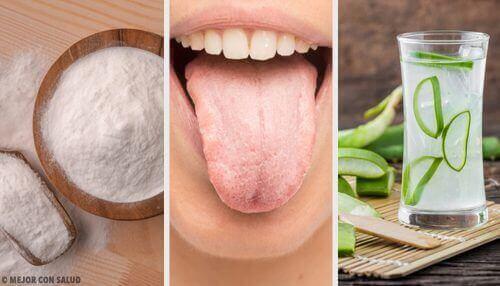 Det hvite belegget på tungen: 8 naturlige remedier