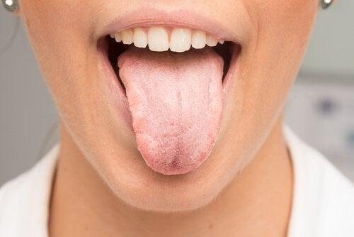 Bli kvitt det hvite belegget på tungen