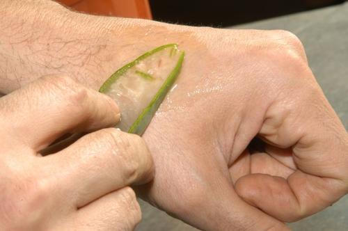 Aloe vera på solbrenthet