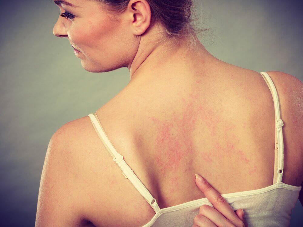 Kvinne med røde streker på huden