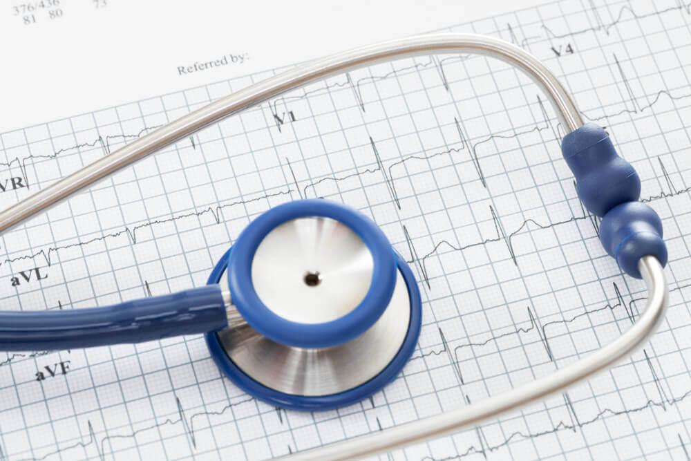 Tidligere hjertesykdommer