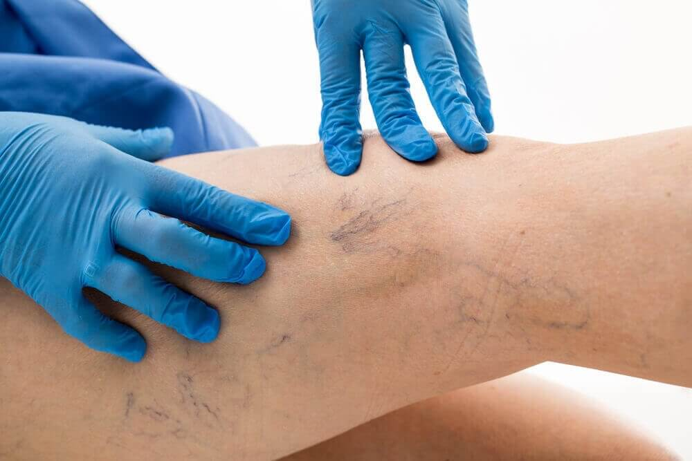 Hvordan forbedre åreknuter med denne aloe vera-behandlingen