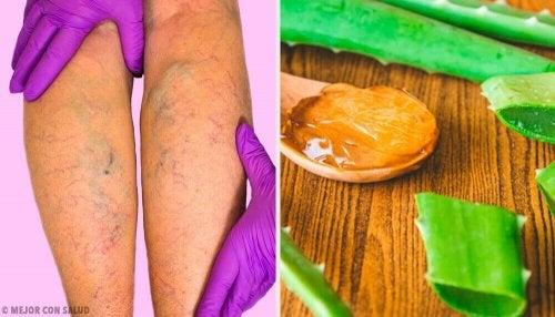 Kurer åreknuter med denne aloe vera-behandlingen