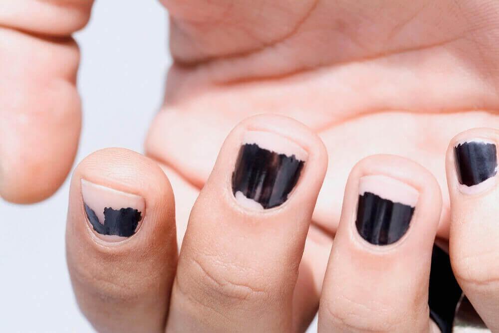 Feilaktig fjerning av neglelakk kan være en årsak til sprø negler