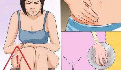 Soppinfeksjon i skjeden: Årsaker, symptomer og behandling