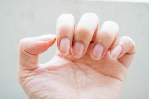 Ni behandlinger for sprø negler: Disse bør du vite om