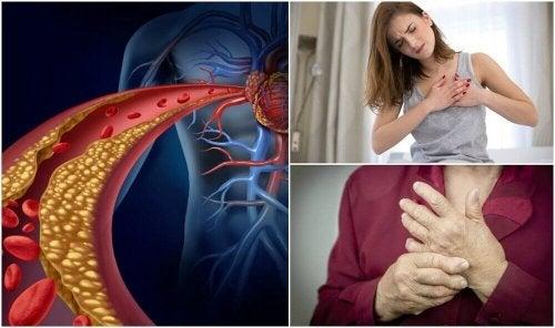 De 10 kjennetegnene på høyt kolesterol