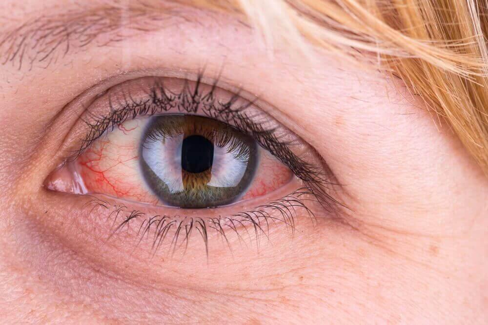 Røde øyne