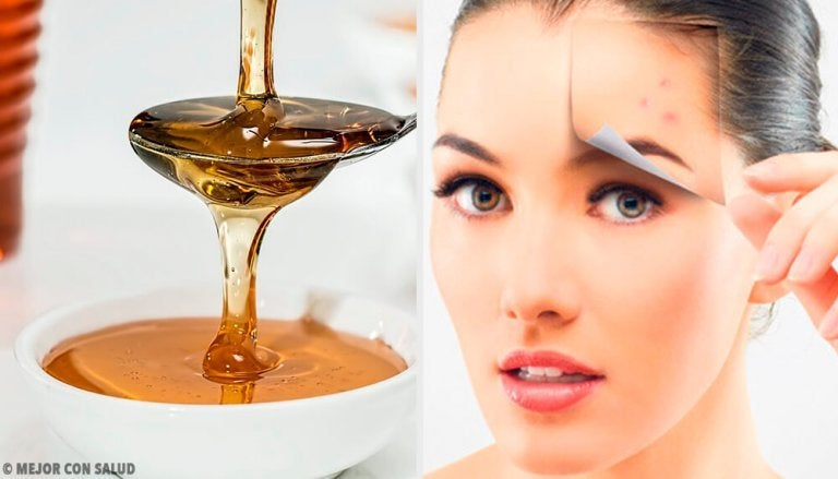 4 naturlige oppskrifter for sunn hud