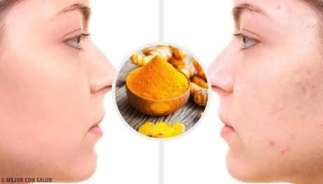 5 gurkemeiemasker som fjerner aknearr
