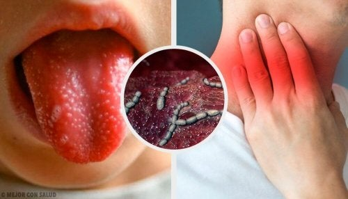 Skarlagensfeber: Årsaker, symptomer og behandling