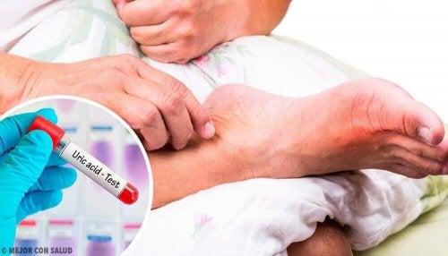 5 vanlige årsaker til høyt nivå av urinsyre