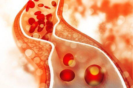 Kontroller det dårlige kolesterolnivået ditt med et sunt kosthold