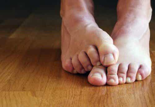 Seks naturlige remedier for fotsopp