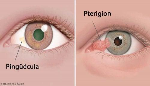 Svulster på øyet: pinguecula og pterygium