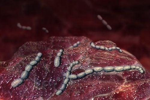 streptokokkbakterier