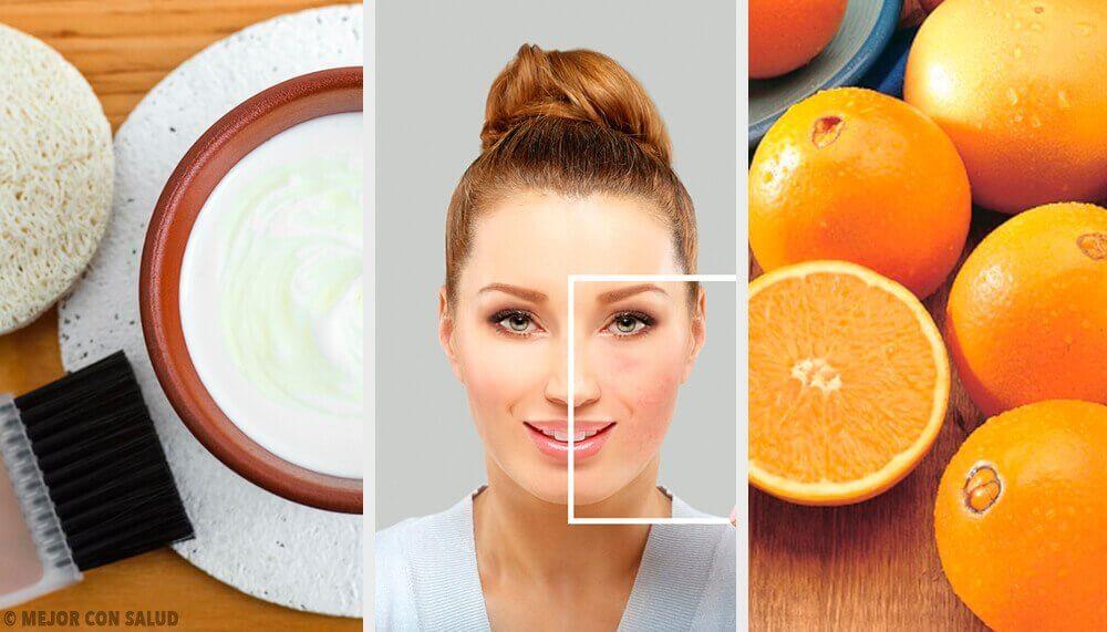 Utrolige naturlige måter å bli kvitt hudflekker på