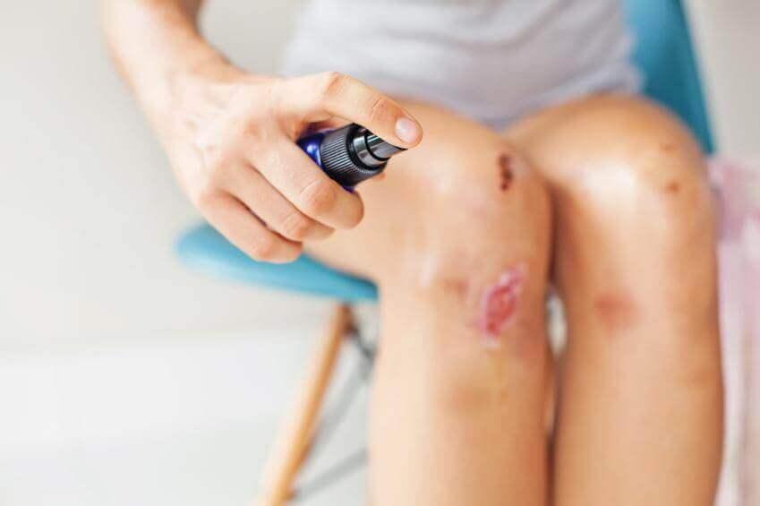 Desinfisering av sår