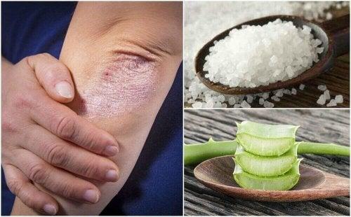 Bekjemp sopp i huden med disse 5 naturlige løsningene